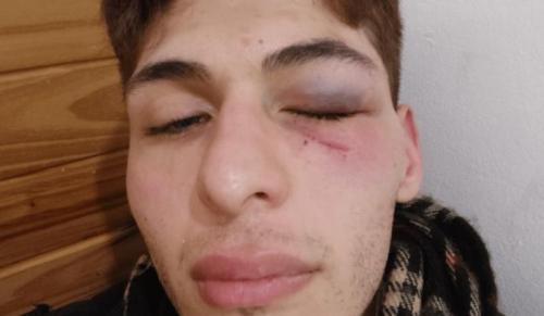 INADI Buenos Aires condenó la agresión sufrida en La Plata por un joven no binario con síndrome de Asperger.